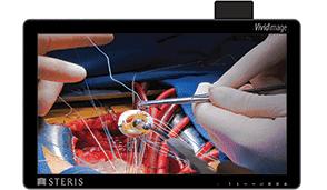 Беспроводной хирургический монитор VIVIDIMAGE